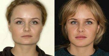 Асимметрия лица: причины и лечение. Причины асимметрии лица и методы лечения