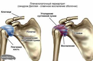 Почему больно поднимать руку вверх болит плечо. Лечение артрита плеча. Почему болит левое плечо? Это может быть опасным симптомом