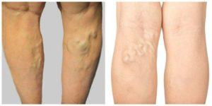 Эффективное лечение варикозных шишек на ногах. Шишки на ногах от варикоза