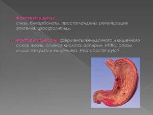 Период регенерации слизистых оболочек желудка и кишечника. Методы восстановления слизистой желудка