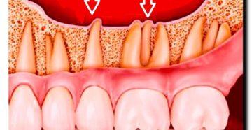 Почему при простуде, во время гриппа и орви болят зубы и воспаляются десны, как лечить полость рта? Простуда десен симптомы