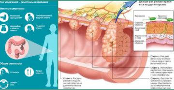 Симптомы рака кишечника у женщин. Рак кишечника: статистика. Рак кишечника: признаки и симптомы, стадии, лечение.
