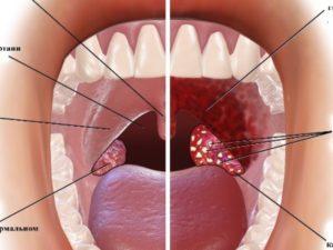 Дырки в миндалинах: причины, лечение и восстановительный период. Дырки в гландах, что это