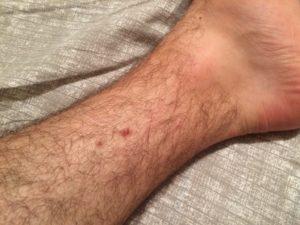 Коричневые пятна на ногах. Темные пятна или точки на ногах Почему появляются на ногах пигментные пятна