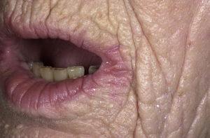 Почему малые половые губы коричневые. Чёрные половые губы