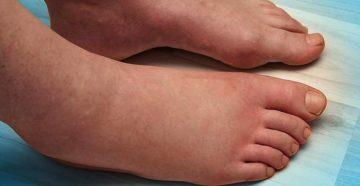 Почему сильно отекают ноги и руки. Причины отека рук. Если ноги отекают только к вечеру