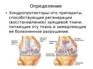 Стимулятор восстановления хрящевой ткани. Методы регенерации хрящевой ткани