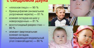 Почему дети с синдромом дауна все на одно лицо. Физическое и умственное развитие. Формы синдрома Дауна