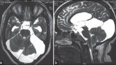 Арахноидальные изменения ликворокистозного характера эпилепсия. Арахноидальные изменения ликворокистозного характера на мрт головного мозга Народные средства и травы