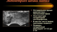 Эндометриоз шейки матки причины возникновения. Что такое эндометриоз шейки. Ректовагинальный эндометриоз: симптомы