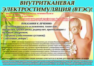 Внутритканевая электростимуляция осложнения. Лечение боли по Герасимову. Показания и противопоказания