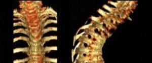 Народные средства лечения позвоночника при разрушении позвоночных дисков. Причины разрушения позвоночника