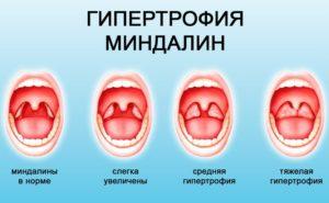 Рыхлые гланды как лечить. Причины и лечение рыхлых миндалин у ребенка и взрослого
