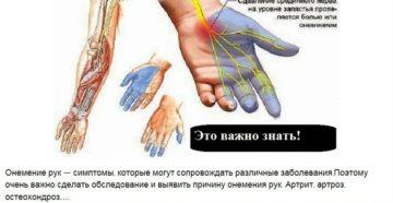 Если холодеет левая рука. Онемение рук от плеча до пальцев