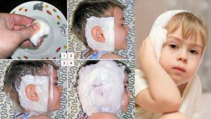Водочный компресс при воспалении мочки уха. Как правильно поставить компресс на ухо взрослому – алгоритм действий и правила